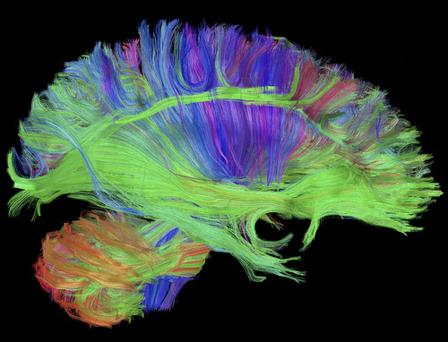No Cure But a Wish to Know: We Want to Know if Brain Disease Will Strike 0
